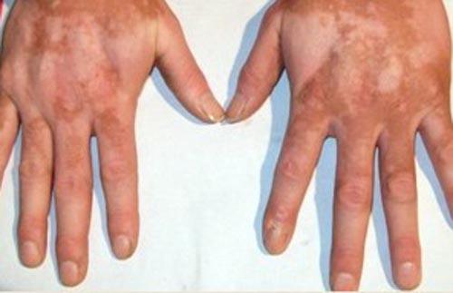 手部白癜风的治疗