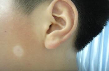 患者注意哪些能避免白癜风复发